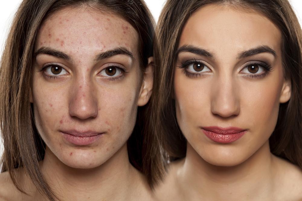 Tratamiento Dermatológico – Acné y Manchas