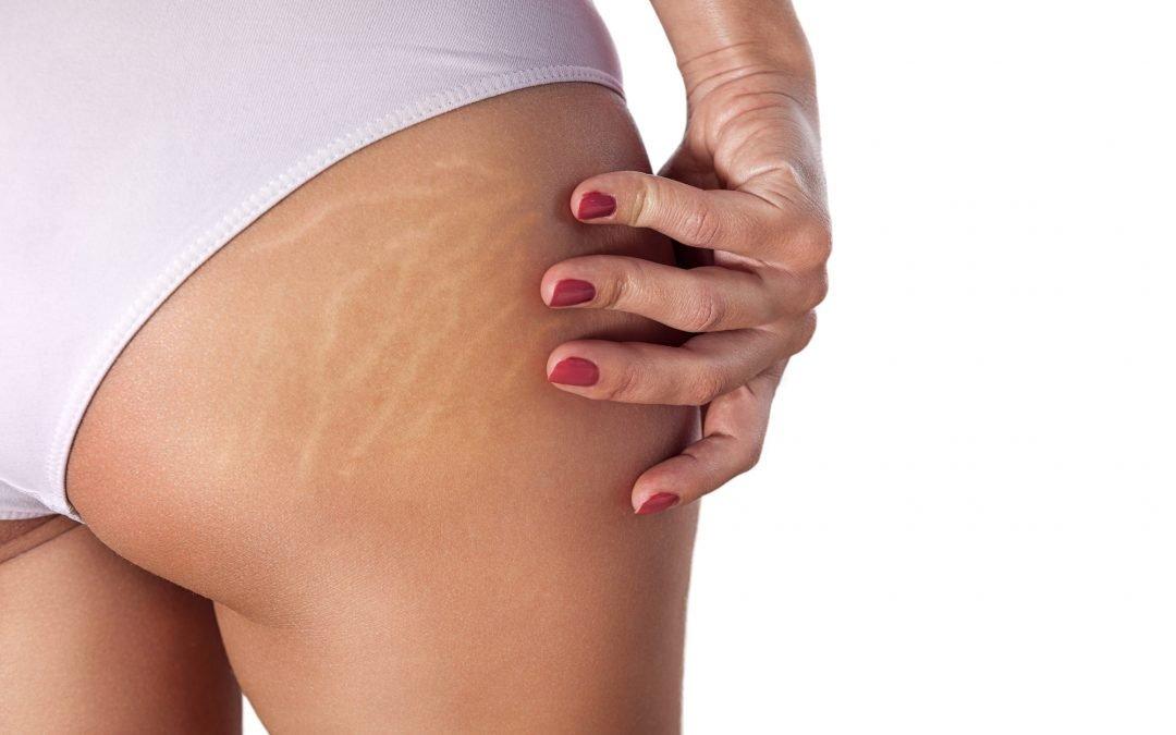 Tratamiento express remodelante: Quemagrasa, anti-estrías y anti celulitis con Bioslimming