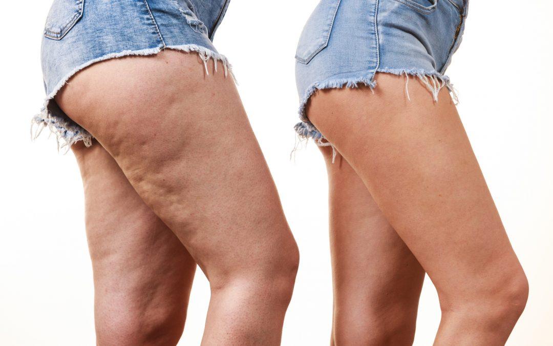 Tratamiento Efecto Liposucción
